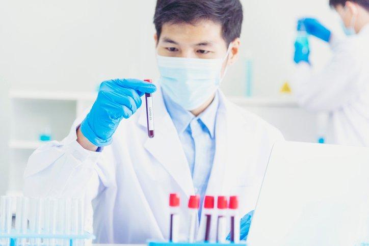 Lab technician job in Germany